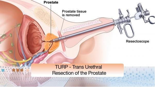 Viagra after prostate removal