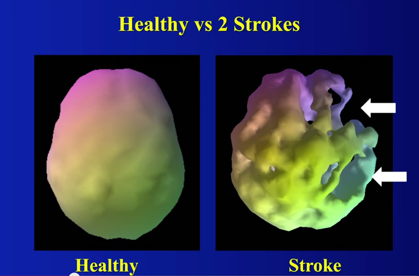 brain healthy-stroke Amen
