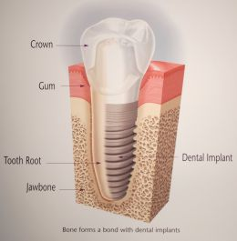tooth movement diagram dental tooth loss and consequences an update