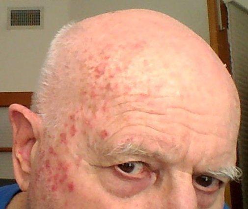 Skin cancer destroyed at home