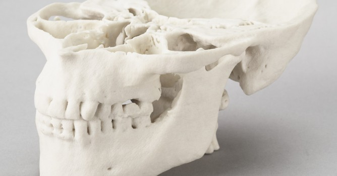 jaw3D-668x350